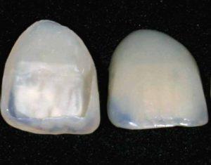 Veneer sample