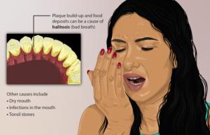 Halitosis or bad breath