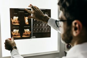 Image of a doctor examining tooth xray